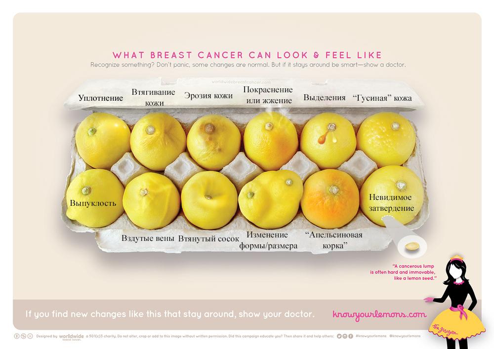 Знай свои лимоны: иллюстрация, которая поможет распознать рак груди