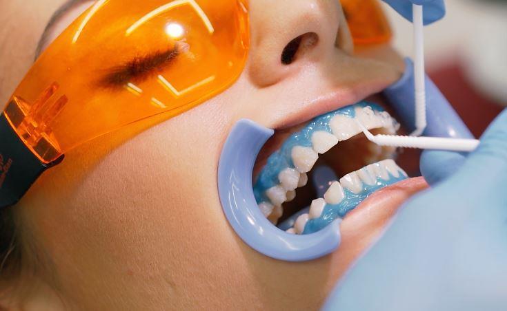Отбеливание зубов: разрушаем мифы и ломаем стереотипы-Фото 4