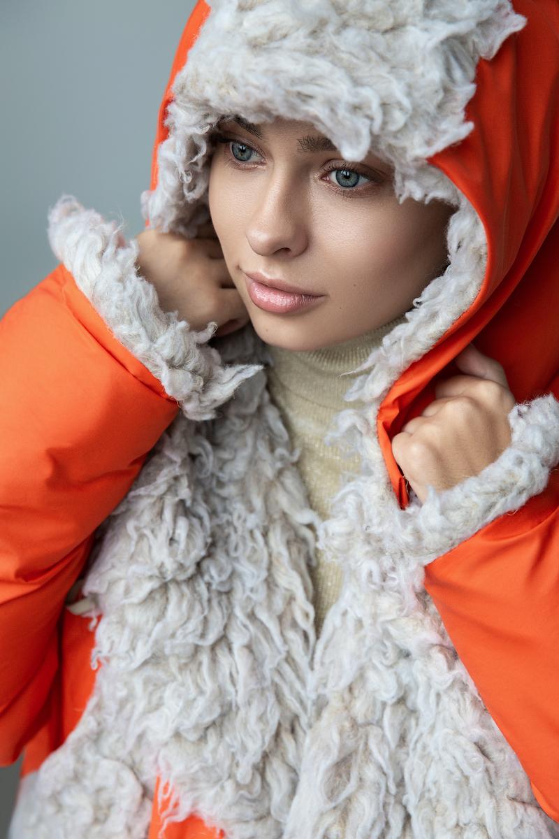 Дайверсити в Украине: модели с особенностями рассказали о том, почему они не нуждаются в жалости-Фото 6