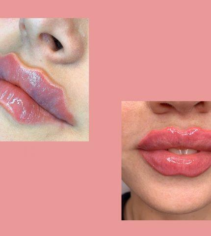 Странный бьюти-тренд: откуда взялись волнистые «губы-осьминоги» или «губы дьявола»-430x480