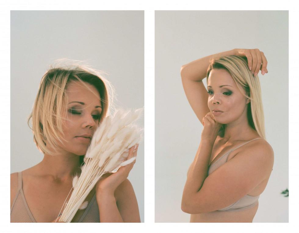 """Фотографка Діана Андруник про проєкт """"Не така як інші вона"""": «Хочу розмити уявну лінію між стандартами краси»-Фото 8"""
