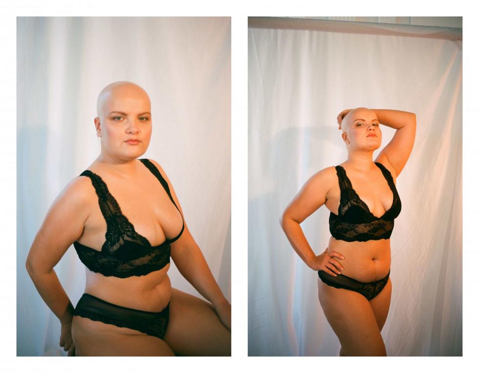 """Фотографка Діана Андруник про проєкт """"Не така як інші вона"""": «Хочу розмити уявну лінію між стандартами краси»-Фото 11"""
